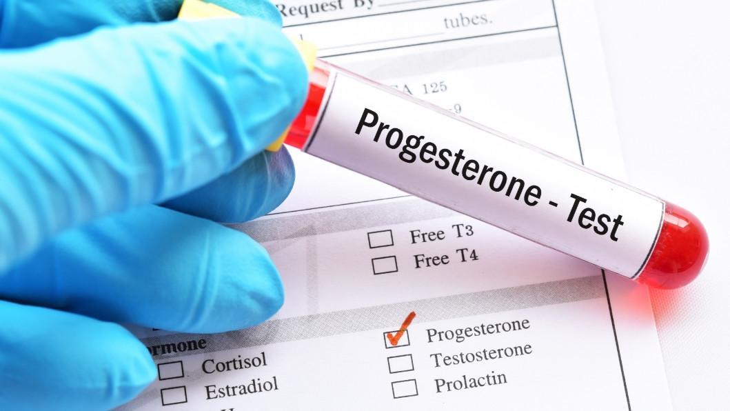 прогестерон тест