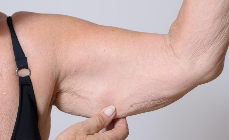 саркопения мышц