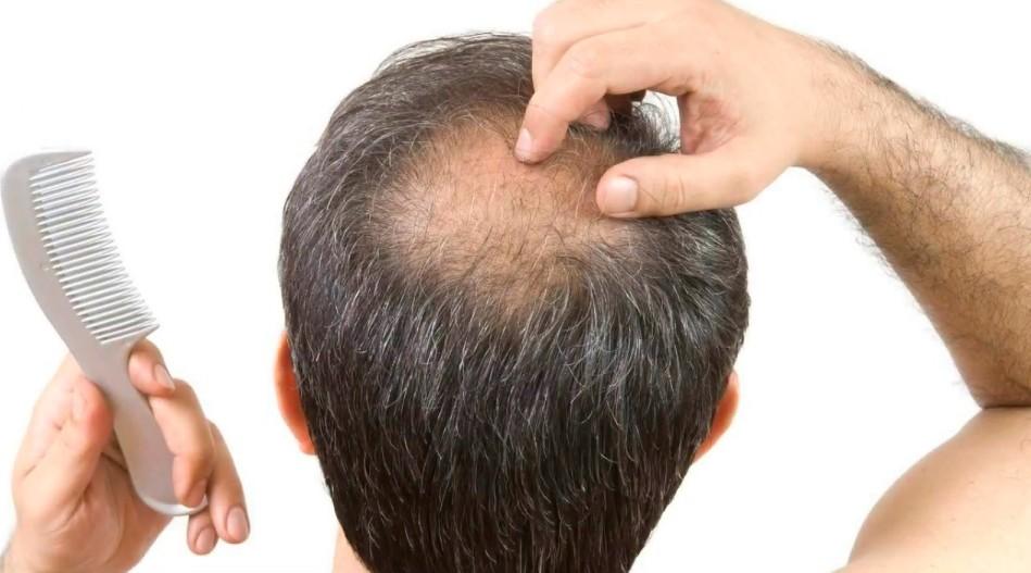 лечение алопеции у мужчин